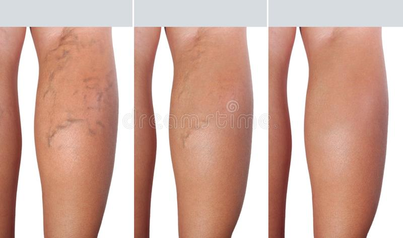 Stage treatment of enlarged veins from extended veins to healthy veins. Healthcare and medical royalty free stock photos
