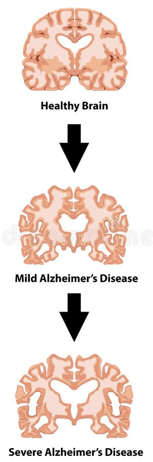 Stages of Alzheimers disease royalty free illustration