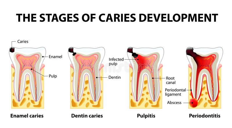 Stages of caries development. Dental disease: caries, pulpitis and periodontitis royalty free illustration