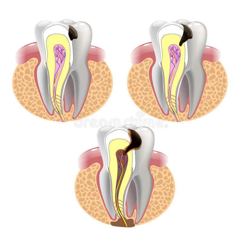 THE STAGES OF CARIES DEVELOPMENT stock illustration