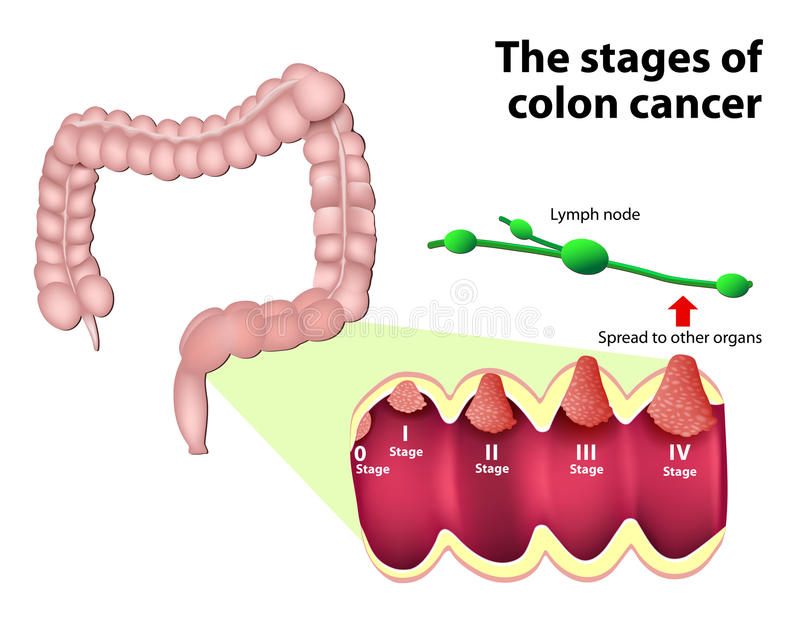 The Stages Of Colorectal Cancer Stock Vector