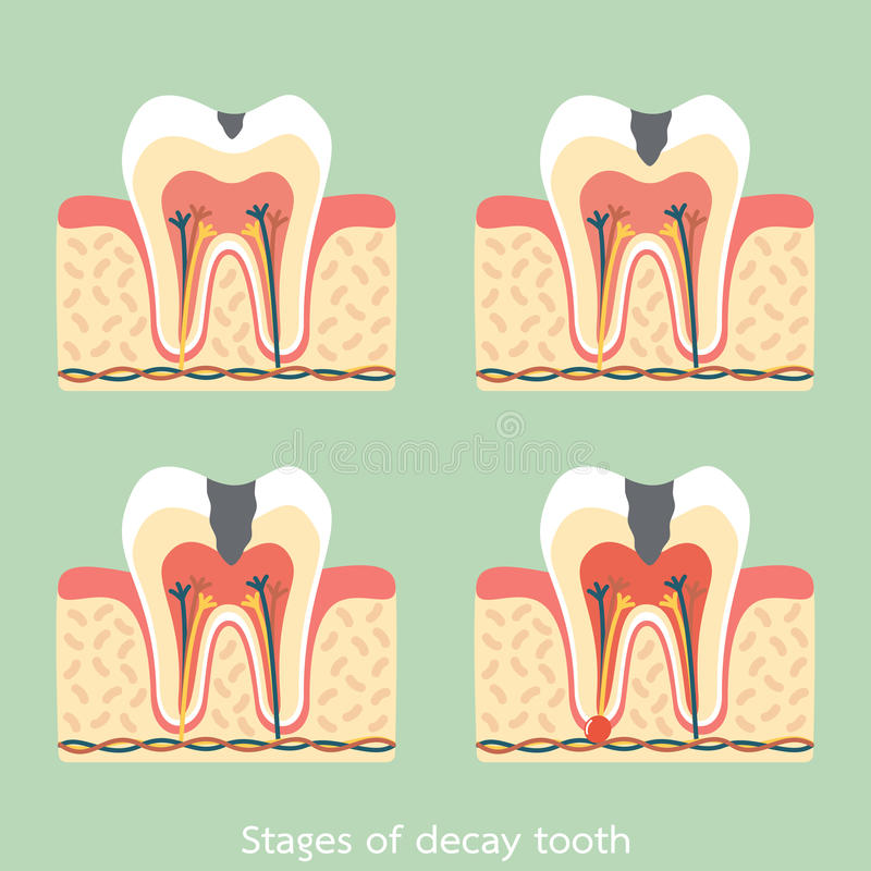 Stages Of Decay Tooth Anatomy Structure Including The Bone And Gum