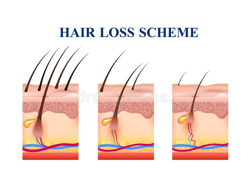 Hair Loss Scheme. Stages of hair loss on human skin, scheme with anatomy structure including follicles, veins, nerves, vector illustration royalty free illustration