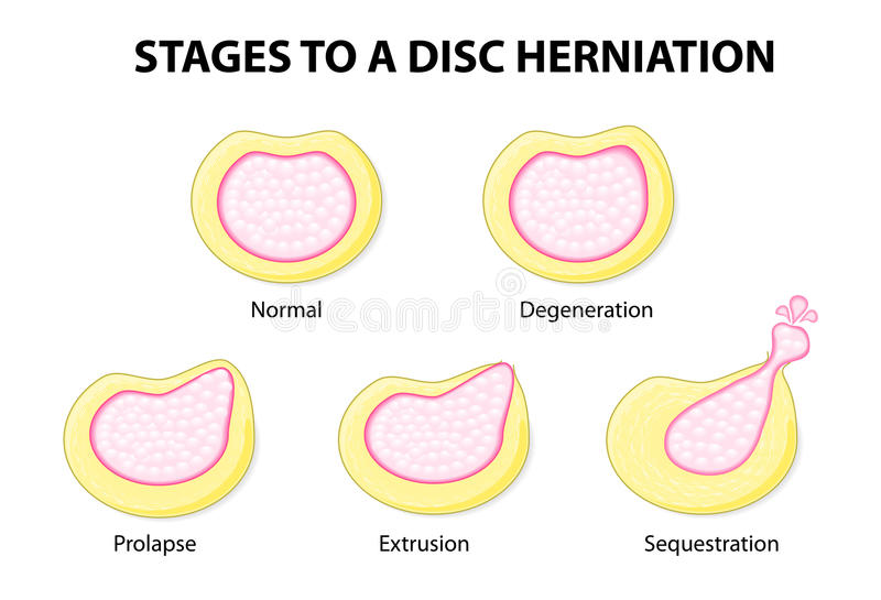 Stages to a disc herniation. Normal, Degeneration, Prolapse, Extrusion, Sequestration royalty free illustration