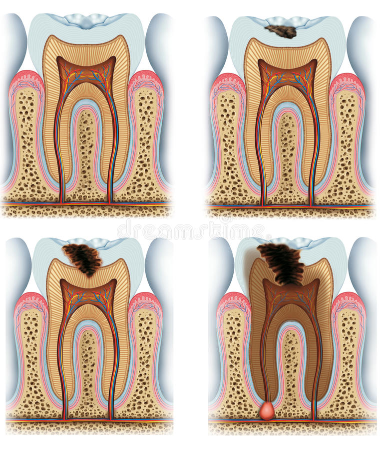 Download Stages of tooth caries stock illustration. Image of loose - 28522034