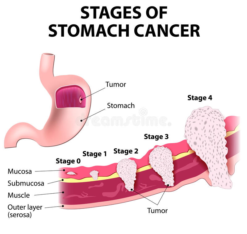 Staging of stomach cancer. The clinical stages of stomach cancer. Classification of Malignant Tumours stock illustration