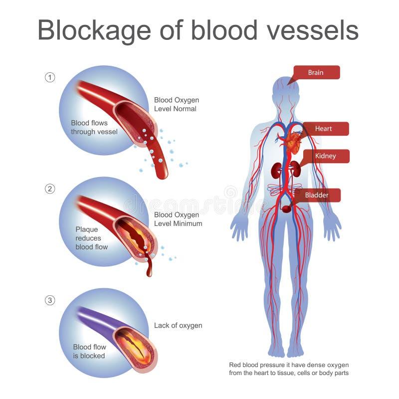 Stagnatie van bloedvat stock illustratie