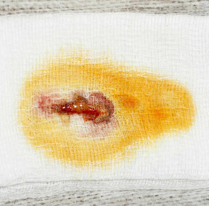 Stain of pus, blood and iodine