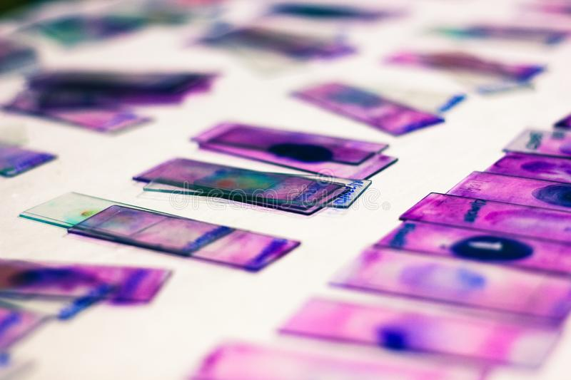 Stained glass slides of peripheral blood smear with violet leishman giemsa stain in hematology pathology laboratory.  royalty free stock photos