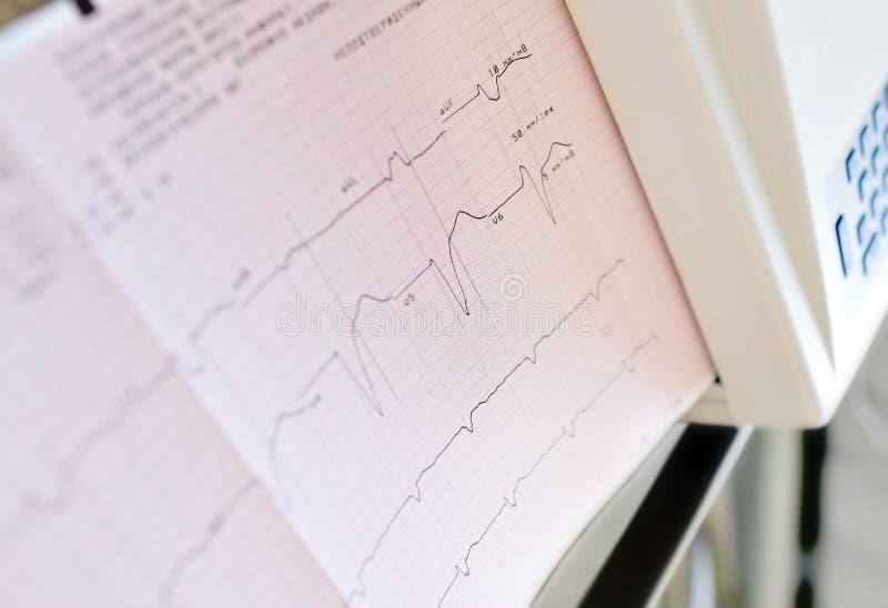 Stampa dell'elettrocardiogramma fotografie stock
