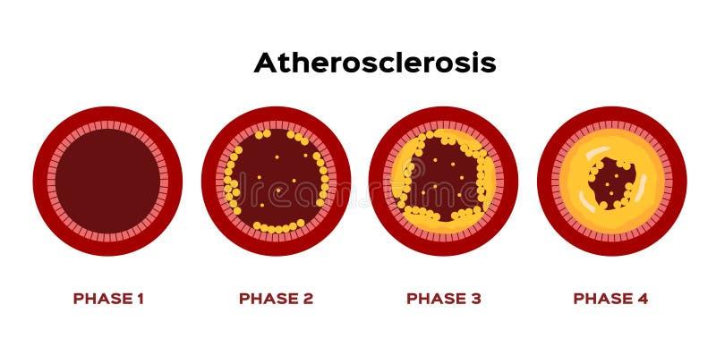 Stap van Atherosclerose grafische vector vet in de cholesterol die van de bloedslagader wordt geplakt royalty-vrije illustratie