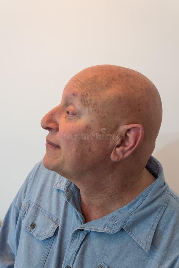 Starego mężczyzna głowa w profilu, łysym, alopecia, chemoterapia, nowotwór, na bielu obraz stock