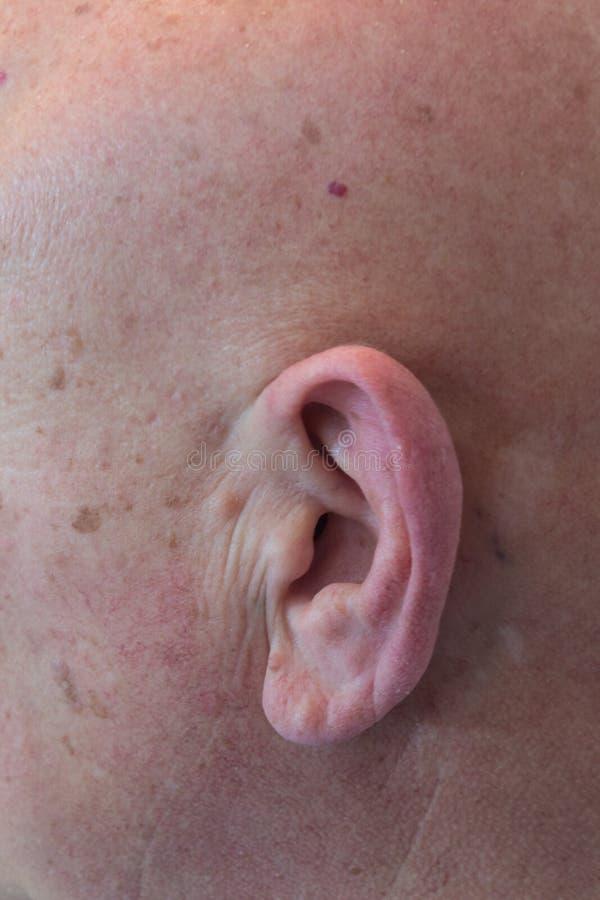 Starego mężczyzna zakończenia widok ucho bez włosy, łysy, alopecia, chemoterapia, nowotwór zdjęcia royalty free