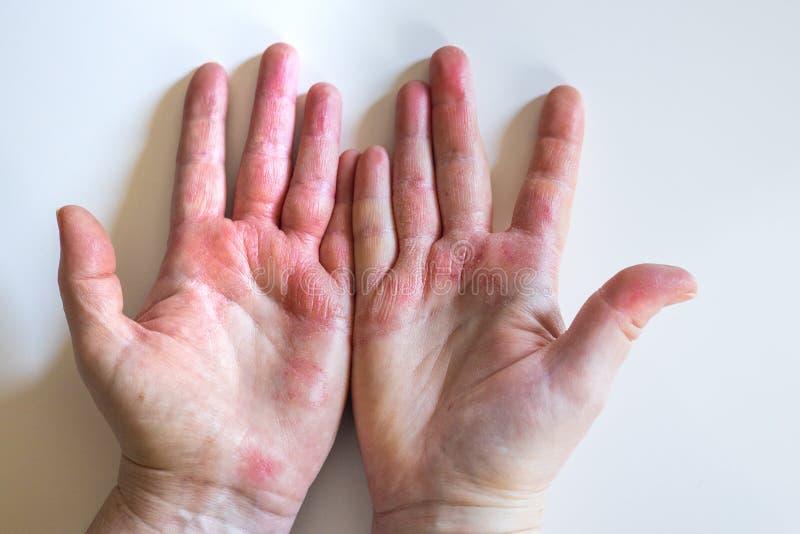 Hände blasen Eine Blase