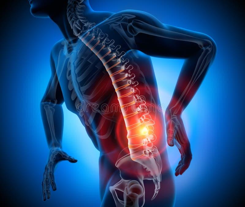 Starkt smärta i ryggen - tolkning för röntgenstråle 3D royaltyfri illustrationer