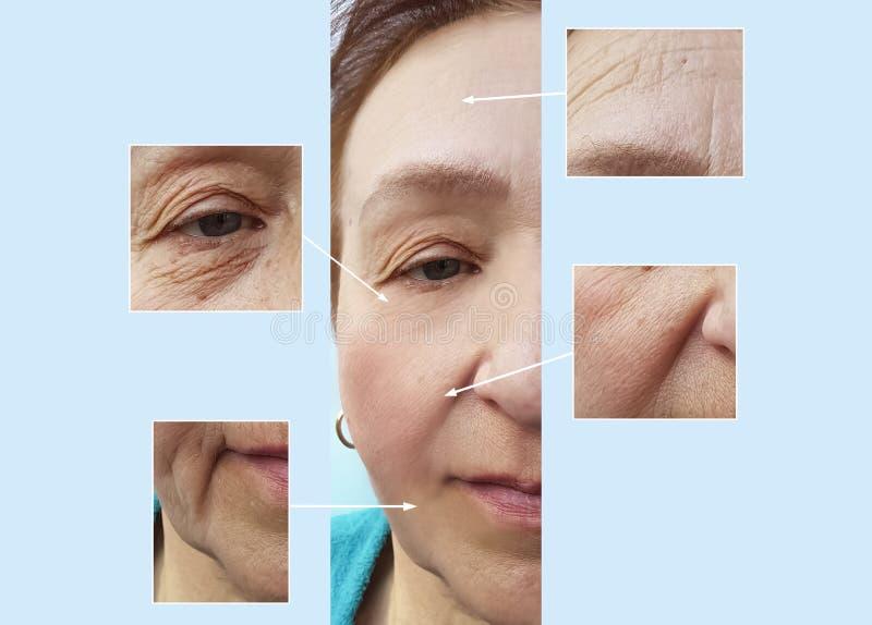 Starsi kobiet zmarszczenia stawiają czoło przed i po cierpliwymi medycznymi korekci pojęcia procedurami zdjęcia stock