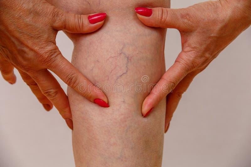 Starsza kobieta w białych majtasach dotyka ona nogi z celulitisami i żylakowatymi żyłami na lekkim odosobnionym tle zdjęcie stock