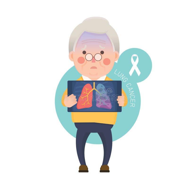 Starszy mężczyzna z nowotworu płuc problemem ilustracji