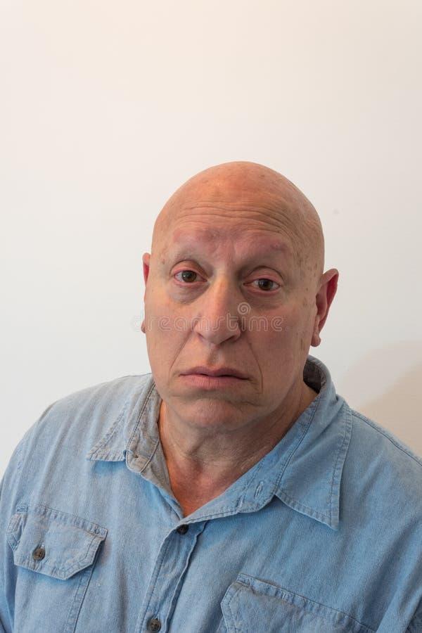 Stary mężczyzna patrzeje kamerę, łysą, alopecia, chemoterapia, nowotwór, odizolowywający na bielu obraz stock