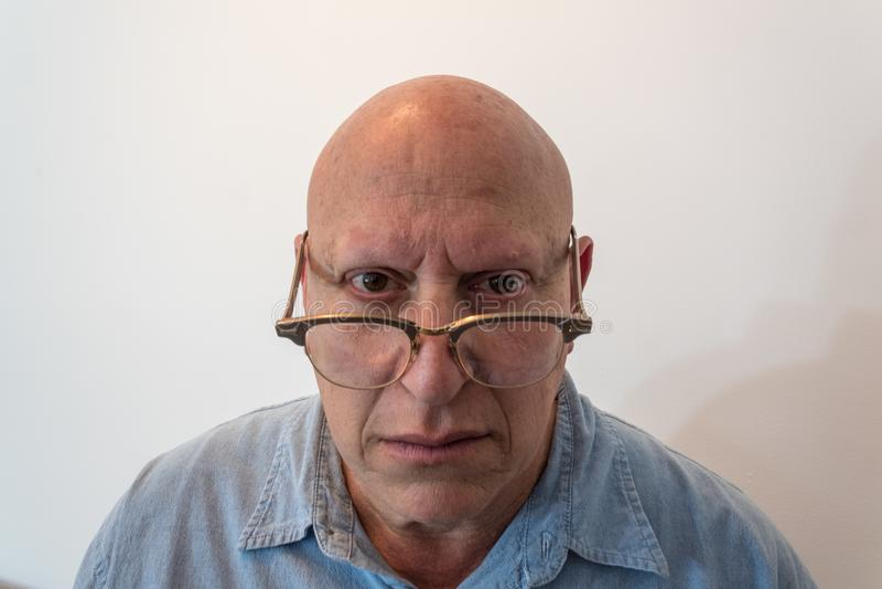 Stary mężczyzna patrzeje nad rogiem rimmed szkła, łysych, alopecia, chemoterapia, nowotwór, na bielu fotografia stock