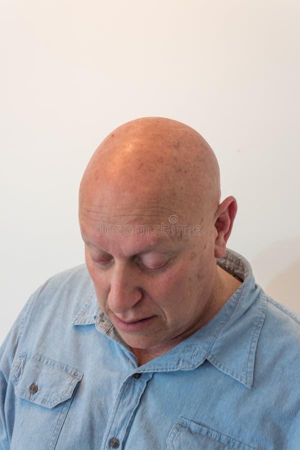 Stary mężczyzna patrzeje w dół, łysy, alopecia, chemoterapia, nowotwór obrazy stock