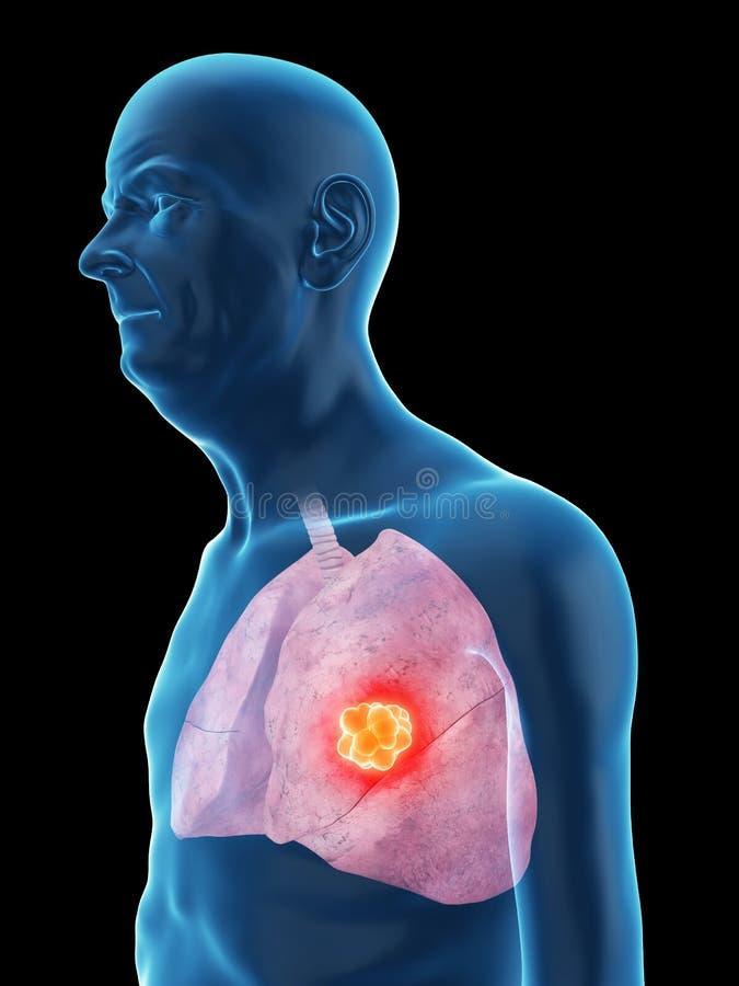 Stary obsługuje nowotwór płuc royalty ilustracja