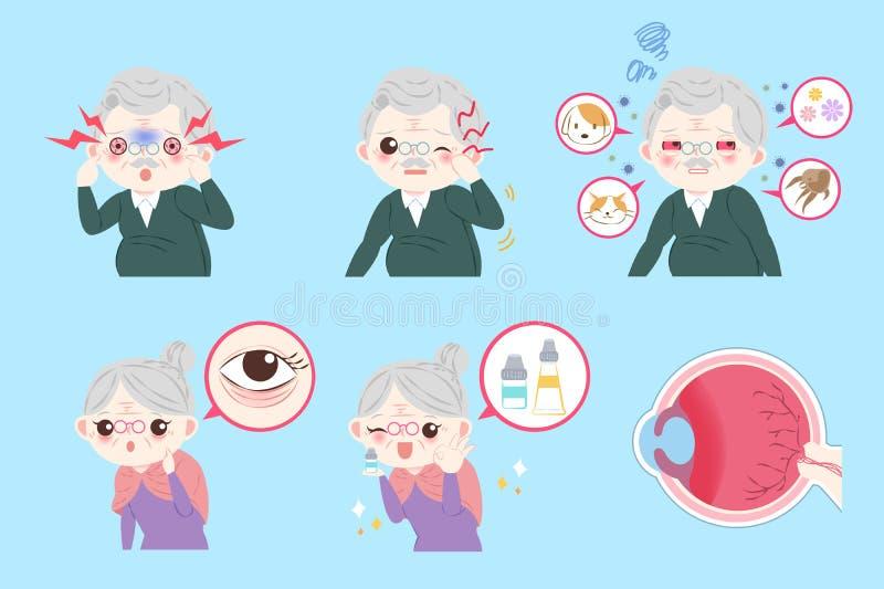 Starzy ludzie z oko alergią ilustracja wektor