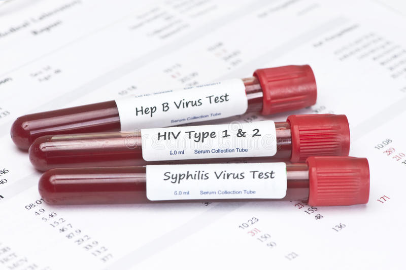 STD Tests royalty free stock photography