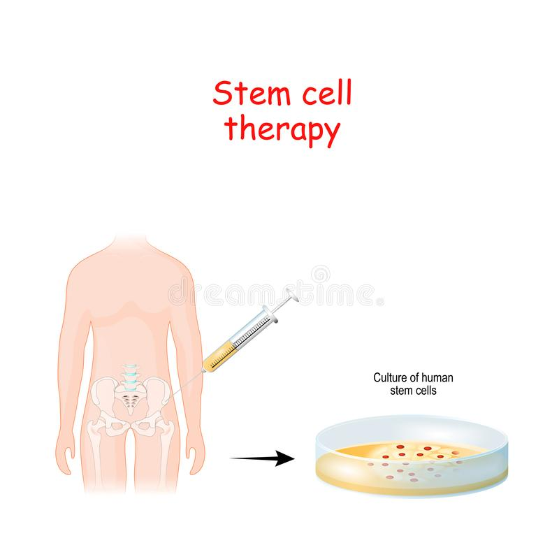 Free Stem Cell Therapy Royalty Free Stock Image - 161075026