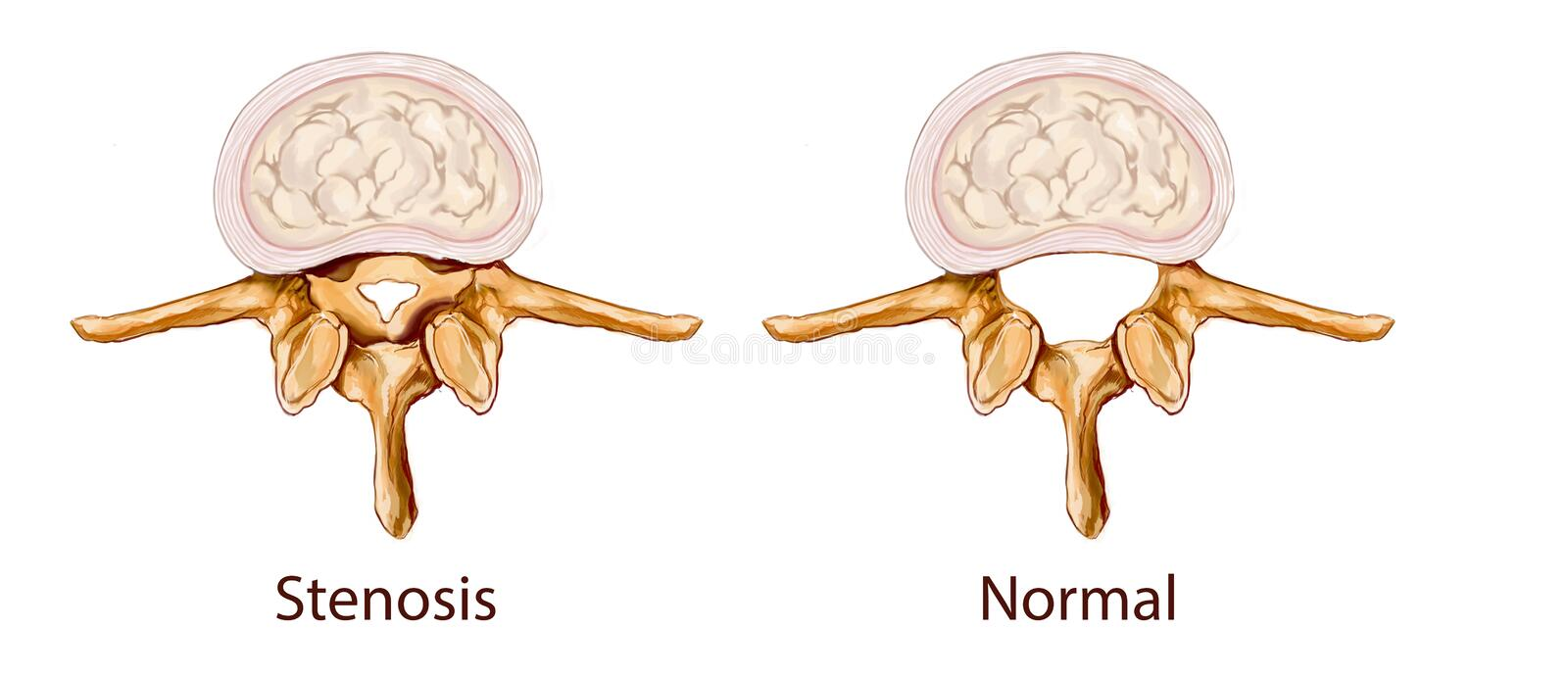 Stenosis illustration stock images