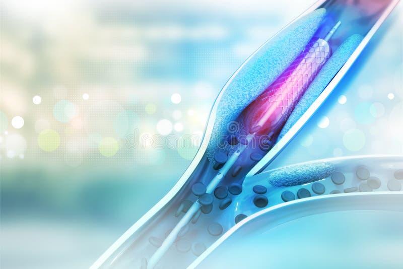 Stent血管成形术 向量例证