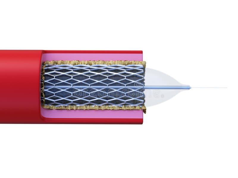 Stent помещенный в артерии иллюстрация вектора