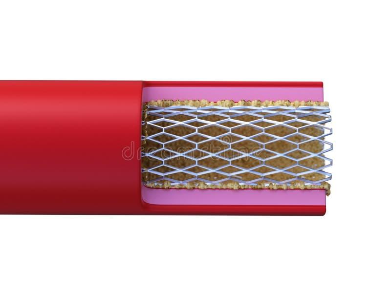 Stent помещенный в артерии бесплатная иллюстрация