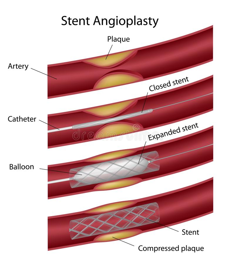 Stent angioplasty royaltyfri illustrationer