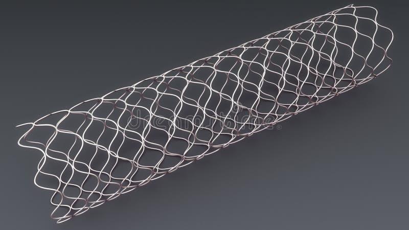 Stent d'angioplastie illustration de vecteur