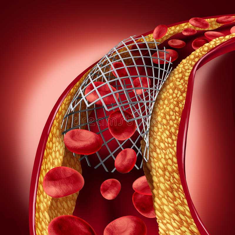 Stent Implant Concept. As a heart disease treatment symbol with an angioplasty procedure in an artery that has cholesterol plaque blockage being opened for royalty free illustration