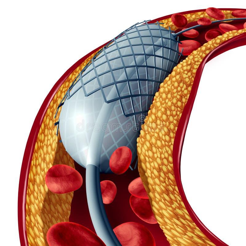 Stent y angioplastia aislados ilustración del vector
