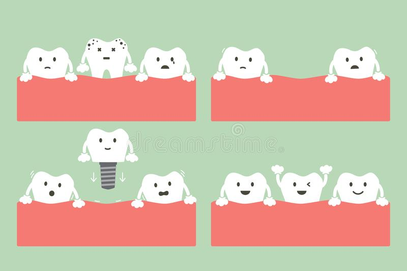 Step of caries to dental implant with crown vector illustration