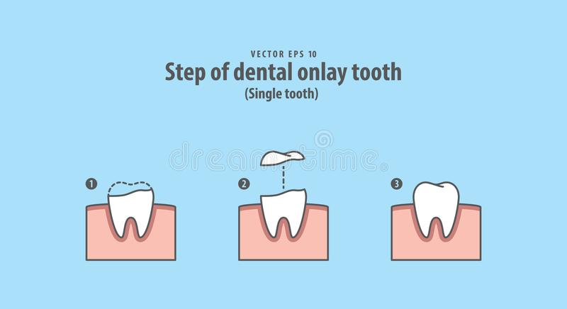 Step of dental onlay tooth Single tooth illustration vector on. Blue background. Dental concept stock illustration