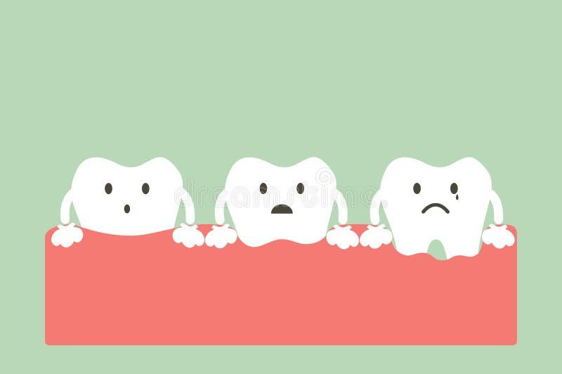 Step of gum disease. Dental cartoon vector, step of gum disease - healthy teeth, gingivitis and periodontitis vector illustration