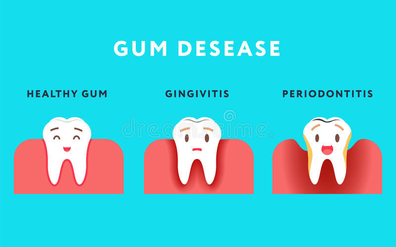 Step of gum disease. Healthy tooth and gingivitis.. Cute cartoon design, illustration isolated on blue background. stock illustration