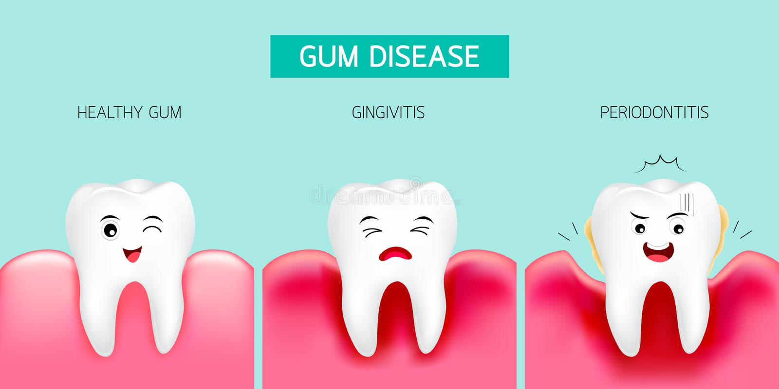 Step of gum disease. Healthy tooth and gingivitis. vector illustration