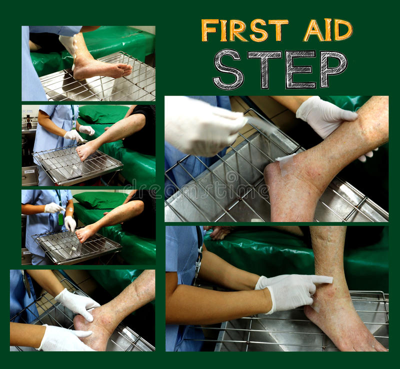 Step picture nurse heal wounds elderly at foot. On wire rack, My mother sit on the bed stock photos