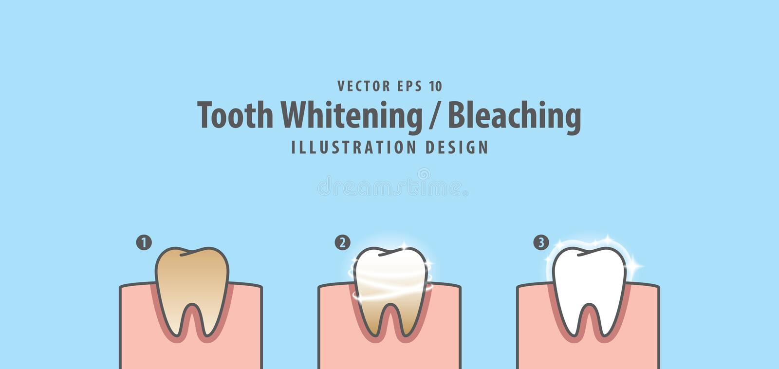 Step of single tooth Whitening-Bleaching and human gum illustration vector on blue background. Dental concept. vector illustration