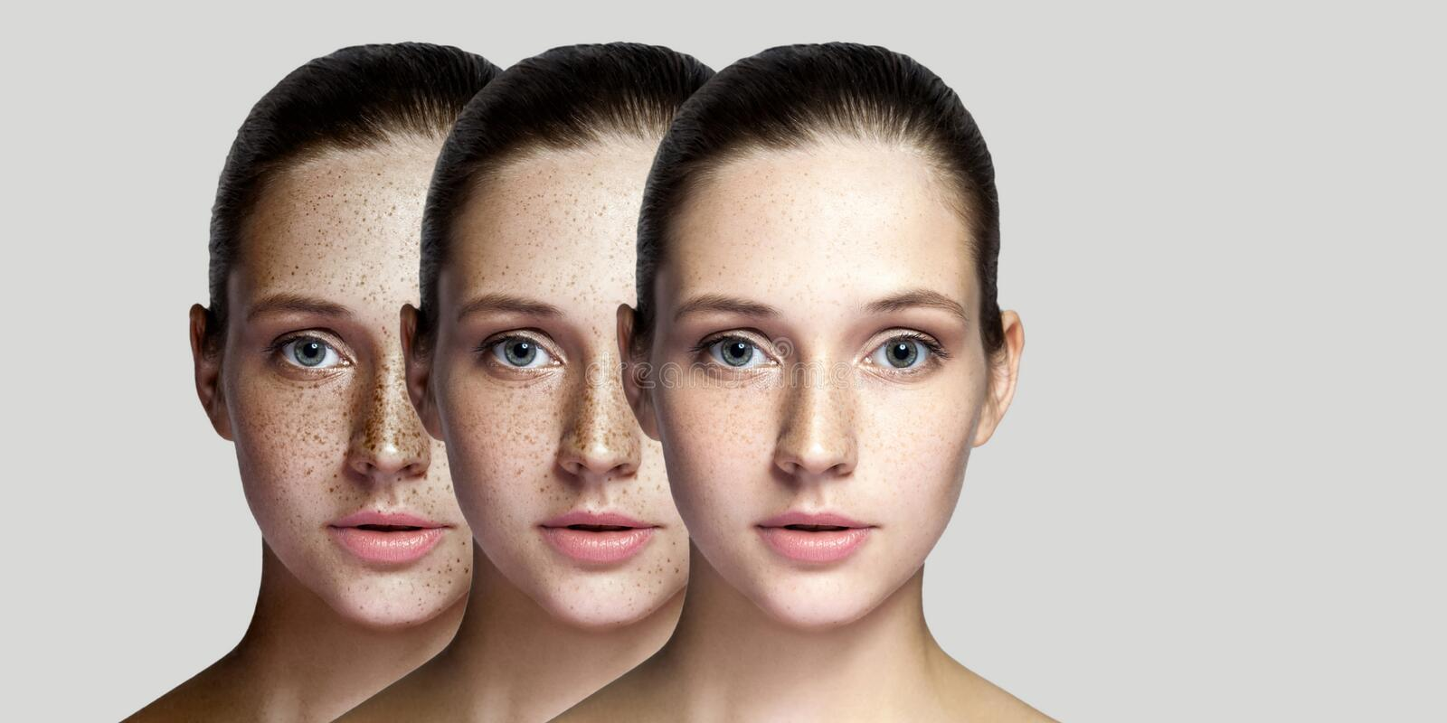 Step by step concept of healing and removing freckles. Closeup portrait of beautiful brunette woman after laser treatment on face royalty free stock photo