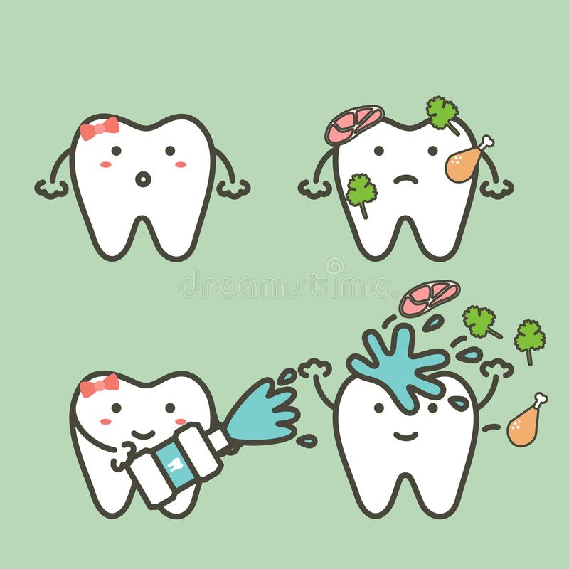 Step of tooth cleaning food stuck in teeth by mouthwash to protection decay tooth, before and after vector illustration