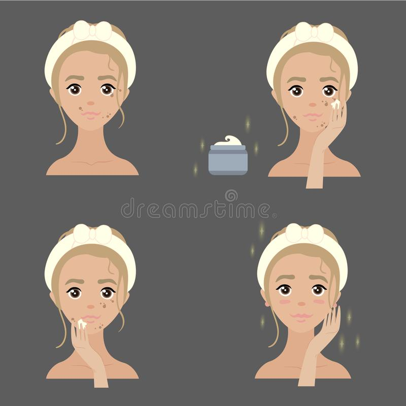 Steps how to apply anti pigmenation facial cream royalty free illustration