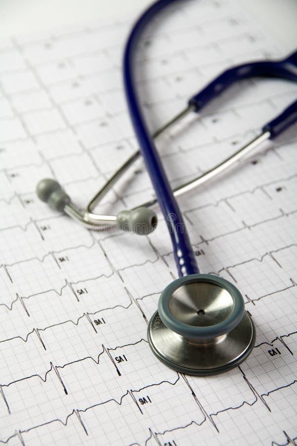 Stethoscoop bovenop een electrocardiogram stock fotografie