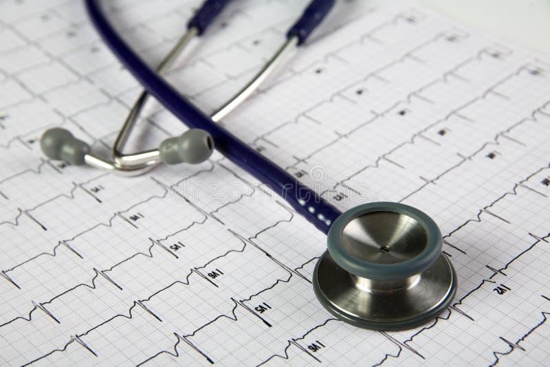 Stethoscoop bovenop een electrocardiogram royalty-vrije stock foto