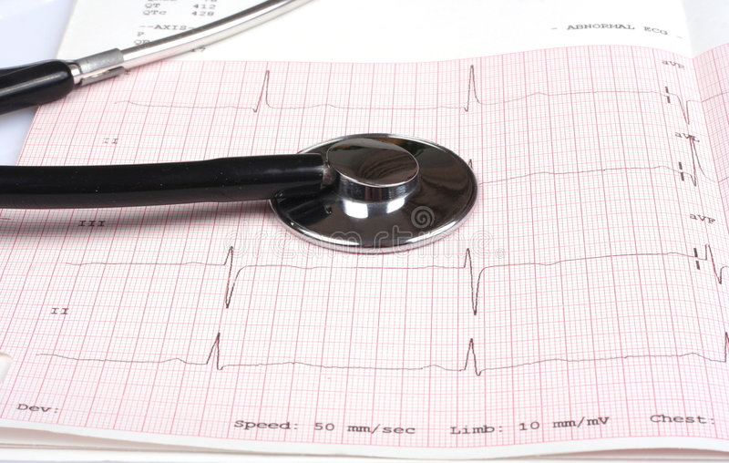 stethoscope and ecg graph royalty free stock photos